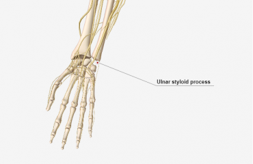 ulnar styloid process fracture